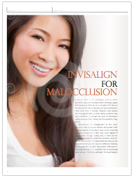 Invisalign for Malocclusion