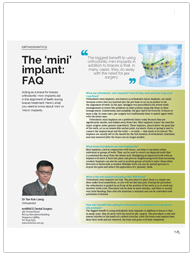 The 'mini' implant: FAQ