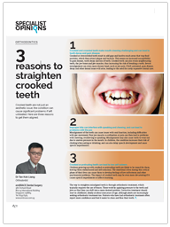 3 reasons to straighten crooked teeth