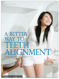 A Better Way to Teeth Alignment